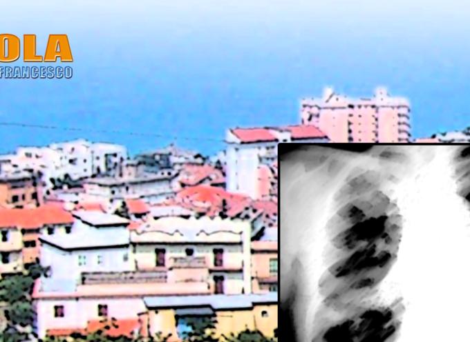 Paola – Conclamato un caso di Legionella in città. Chiuso un B&B