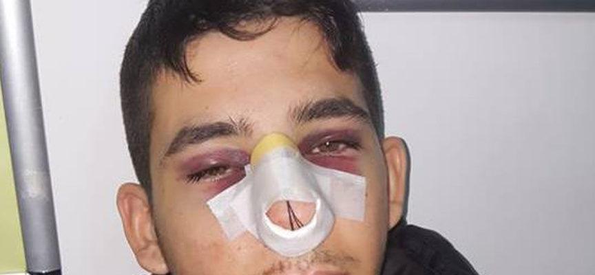 Unical – Rigurgito xenofobo al Campus: pestato giovane paraguayano